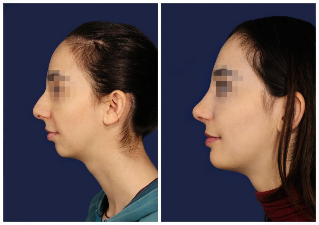 Эндопротезирование подбородка: Фото ДО и ПОСЛЕ - Пример №3-1 - Клиника Vidnova