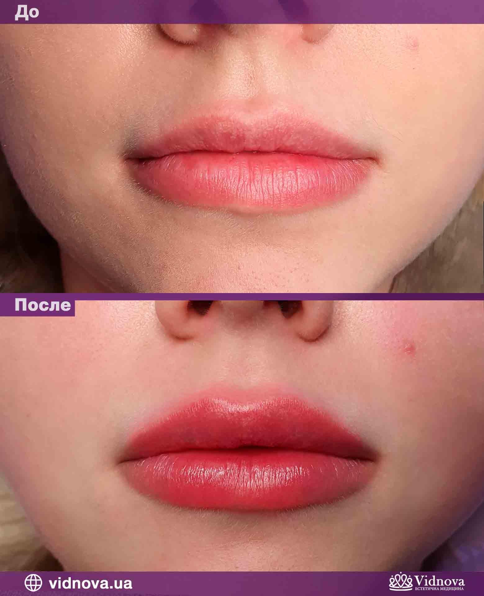 Увеличение губ: Фото До и После - Пример №5-3 - Клиника Vidnova