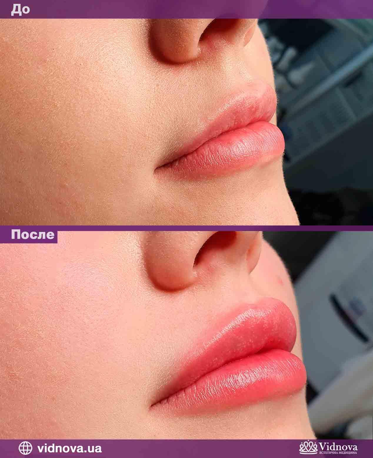 Увеличение губ: Фото До и После - Пример №5-1 - Клиника Vidnova
