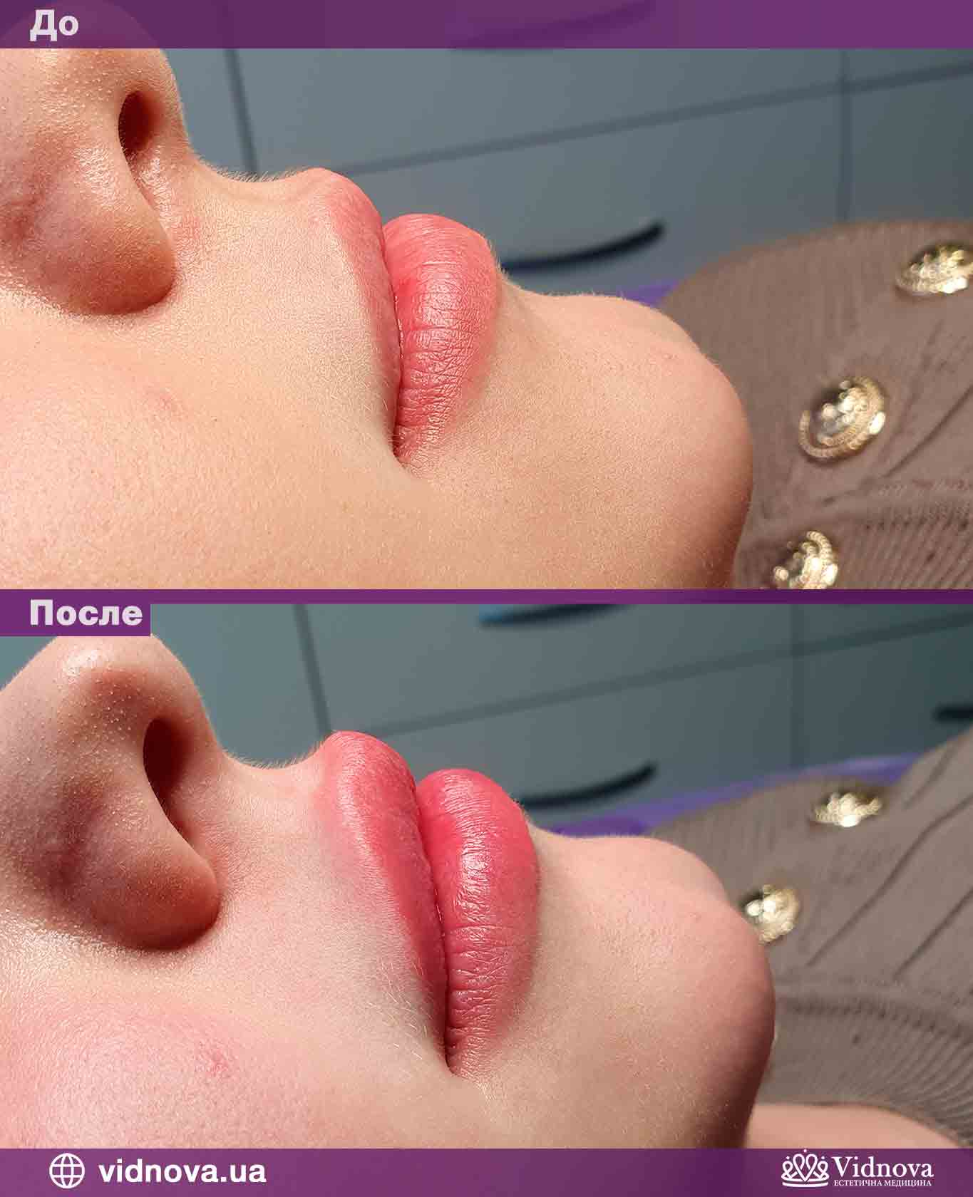 Увеличение губ: Фото До и После - Пример №5-2 - Клиника Vidnova