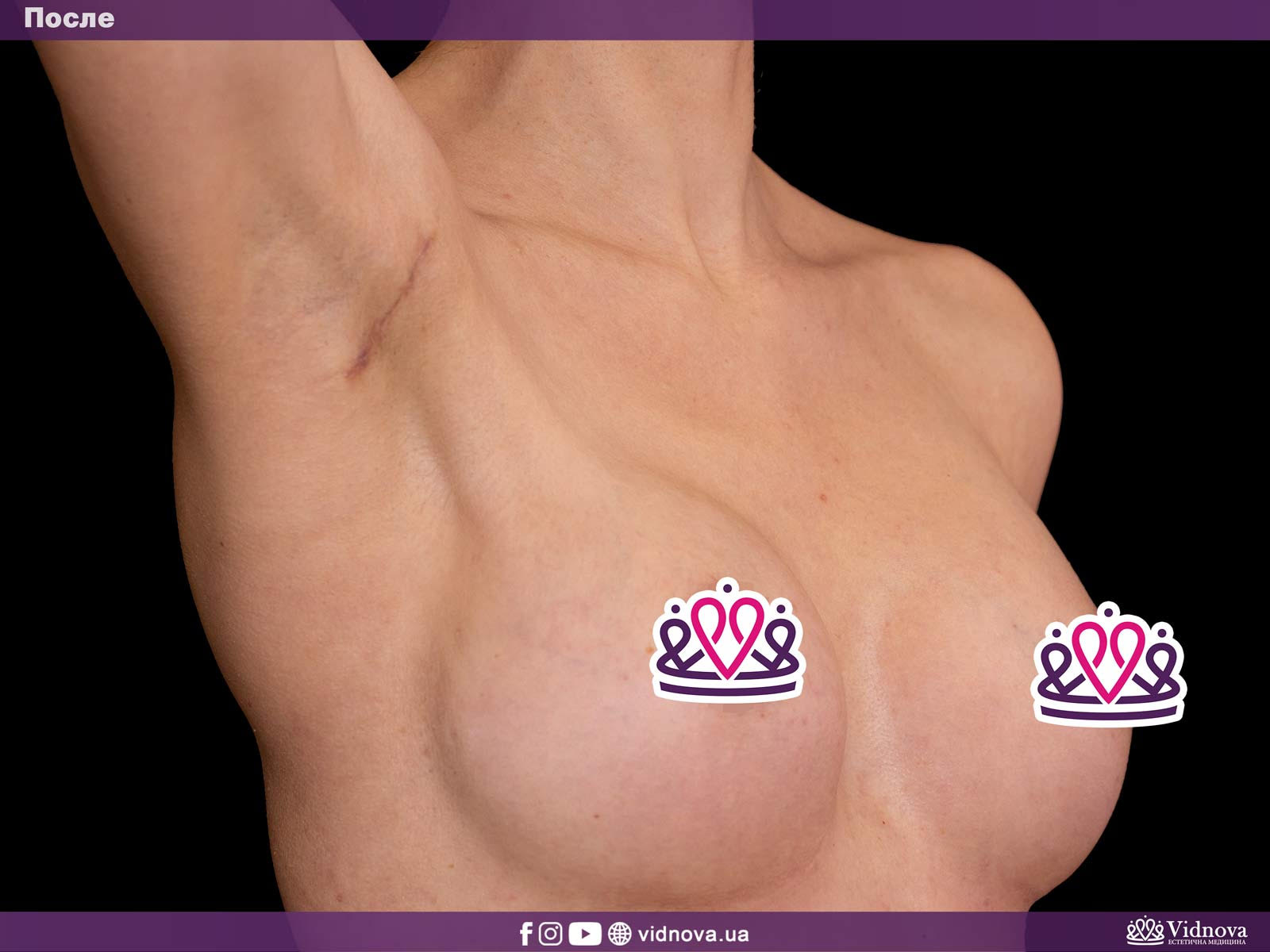 Увеличение груди: Фото ДО и ПОСЛЕ - Пример №6-2 - Клиника Vidnova