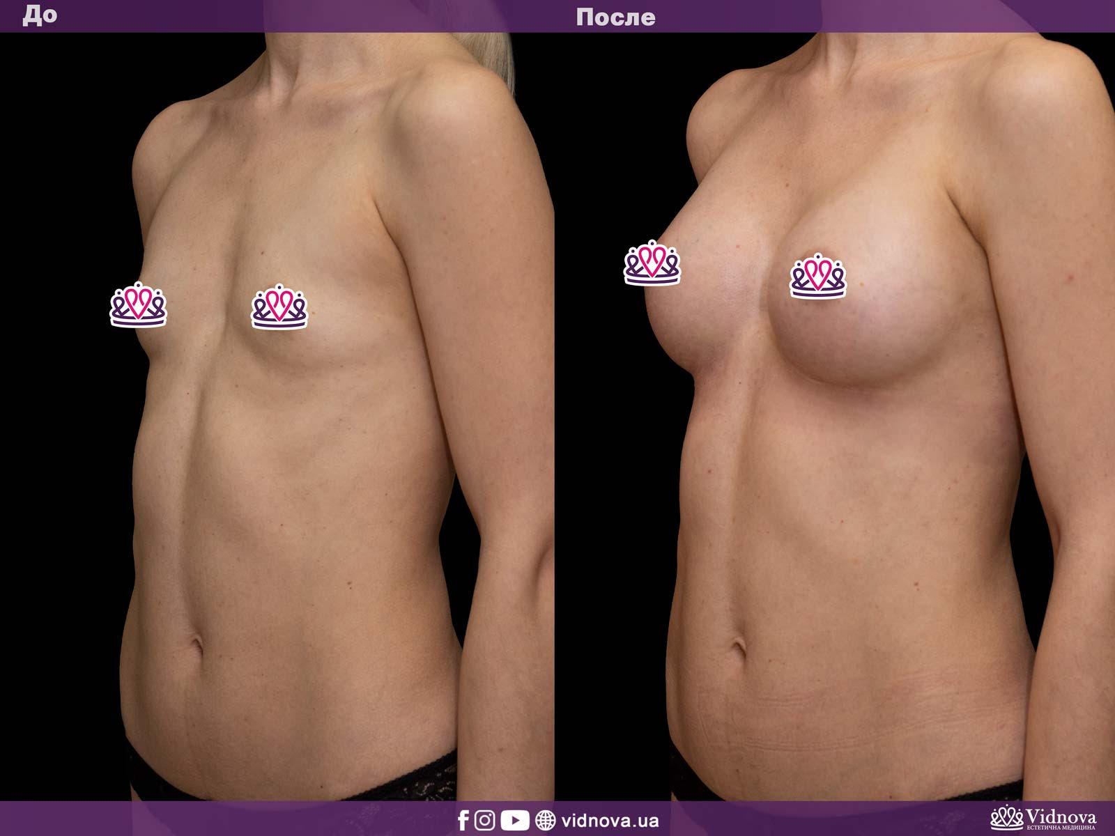 Увеличение груди: Фото ДО и ПОСЛЕ - Пример №12-3 - Клиника Vidnova