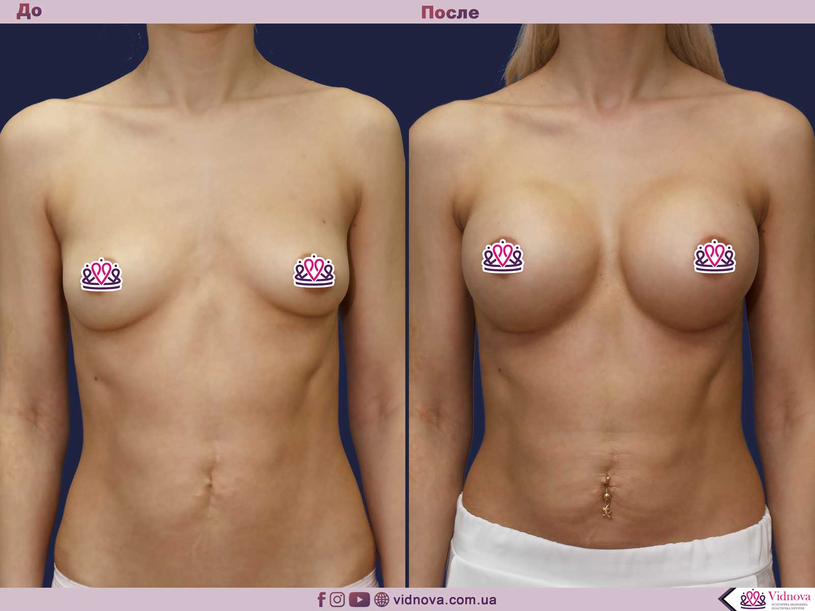 Увеличение груди: Фото ДО и ПОСЛЕ - Пример №69-1 - Клиника Vidnova