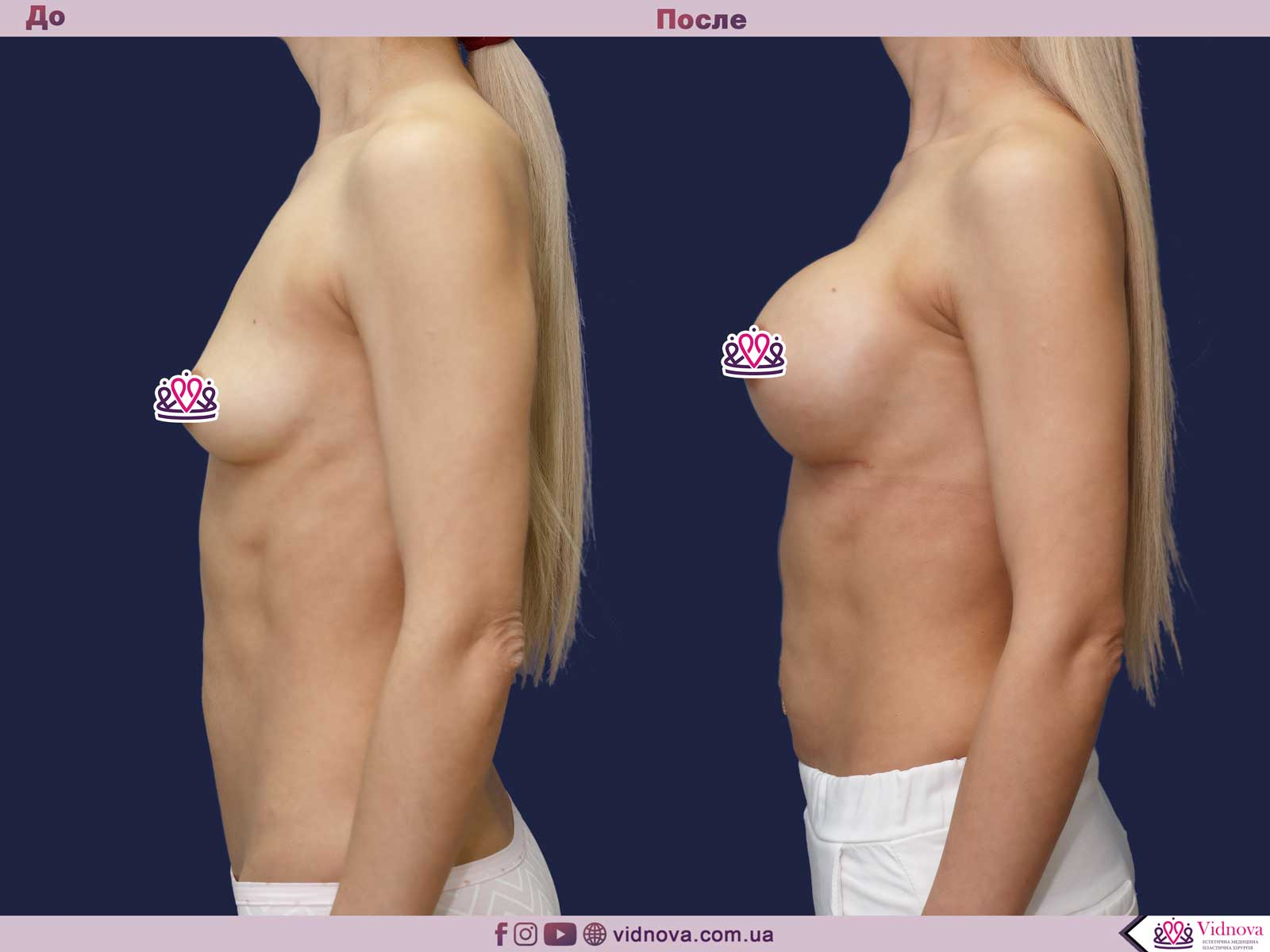 Увеличение груди: Фото ДО и ПОСЛЕ - Пример №69-3 - Клиника Vidnova