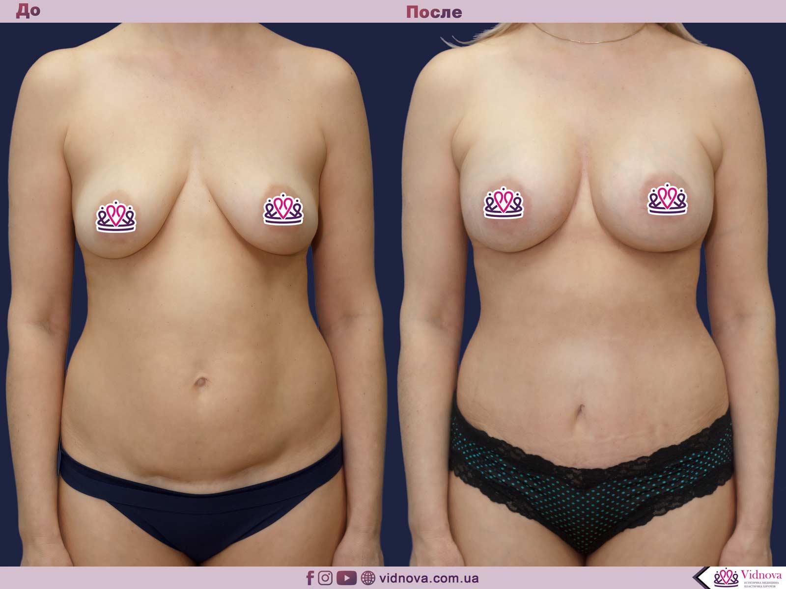 Совмещенные операции: Фото До и После - Пример №7-2 - Клиника Vidnova