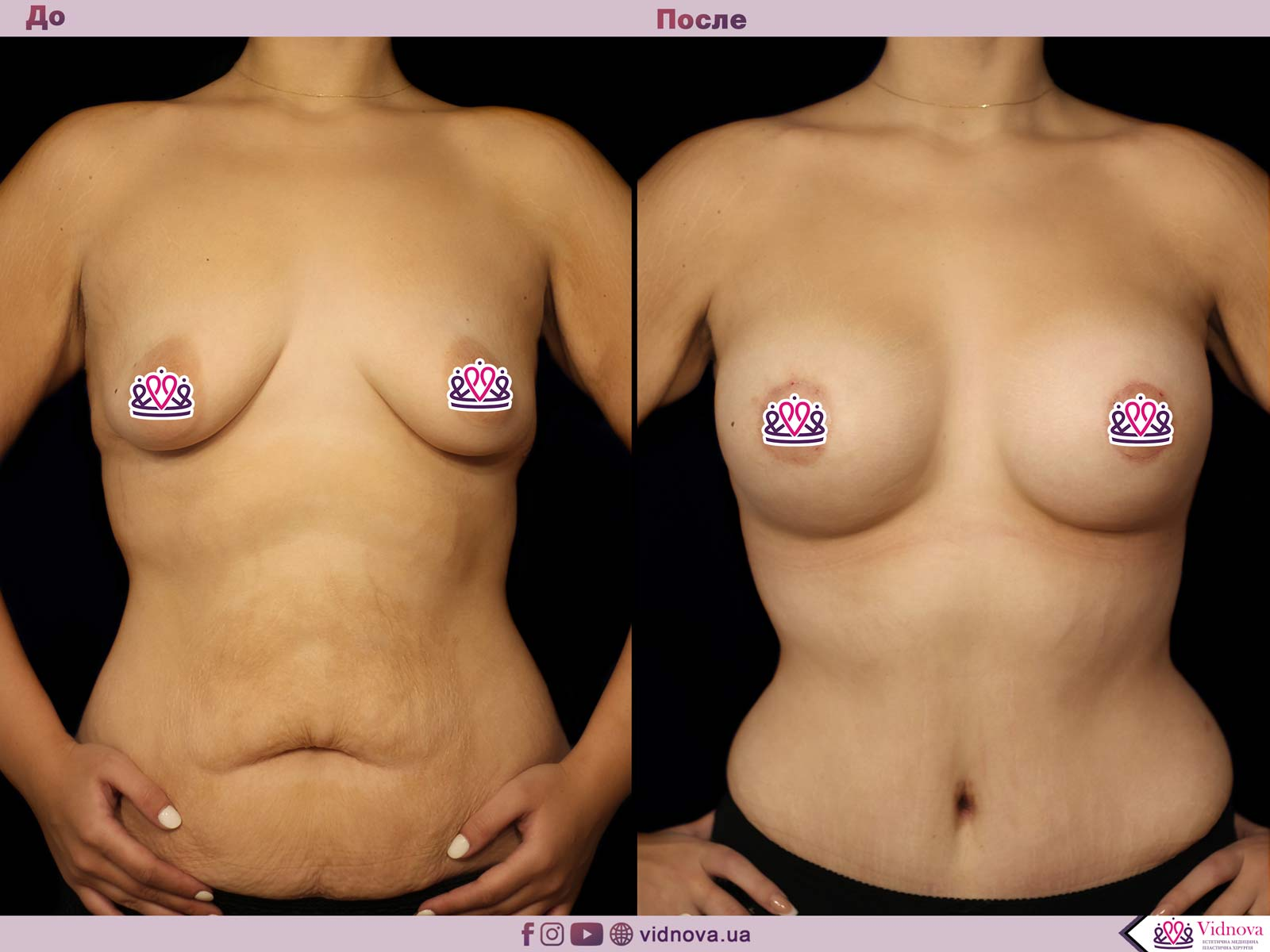 Совмещенные операции: Фото До и После - Пример №6-1 - Клиника Vidnova