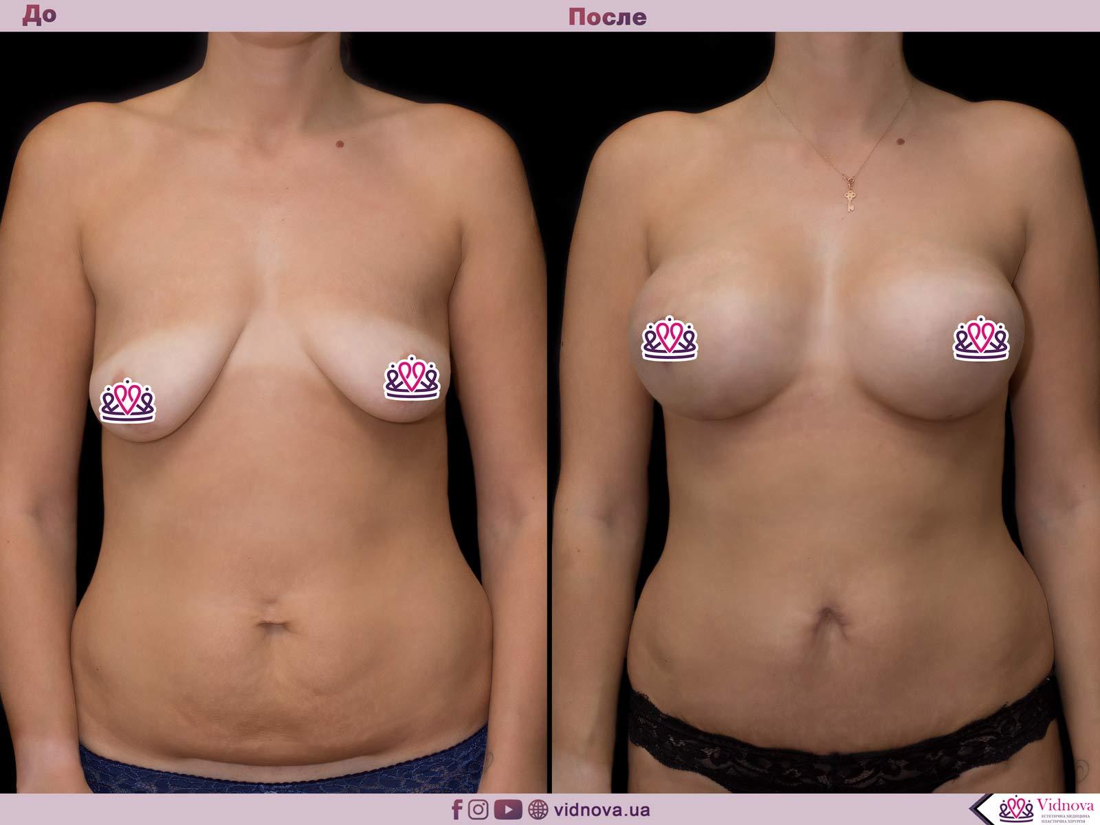 Совмещенные операции: Фото До и После - Пример №5-2 - Клиника Vidnova