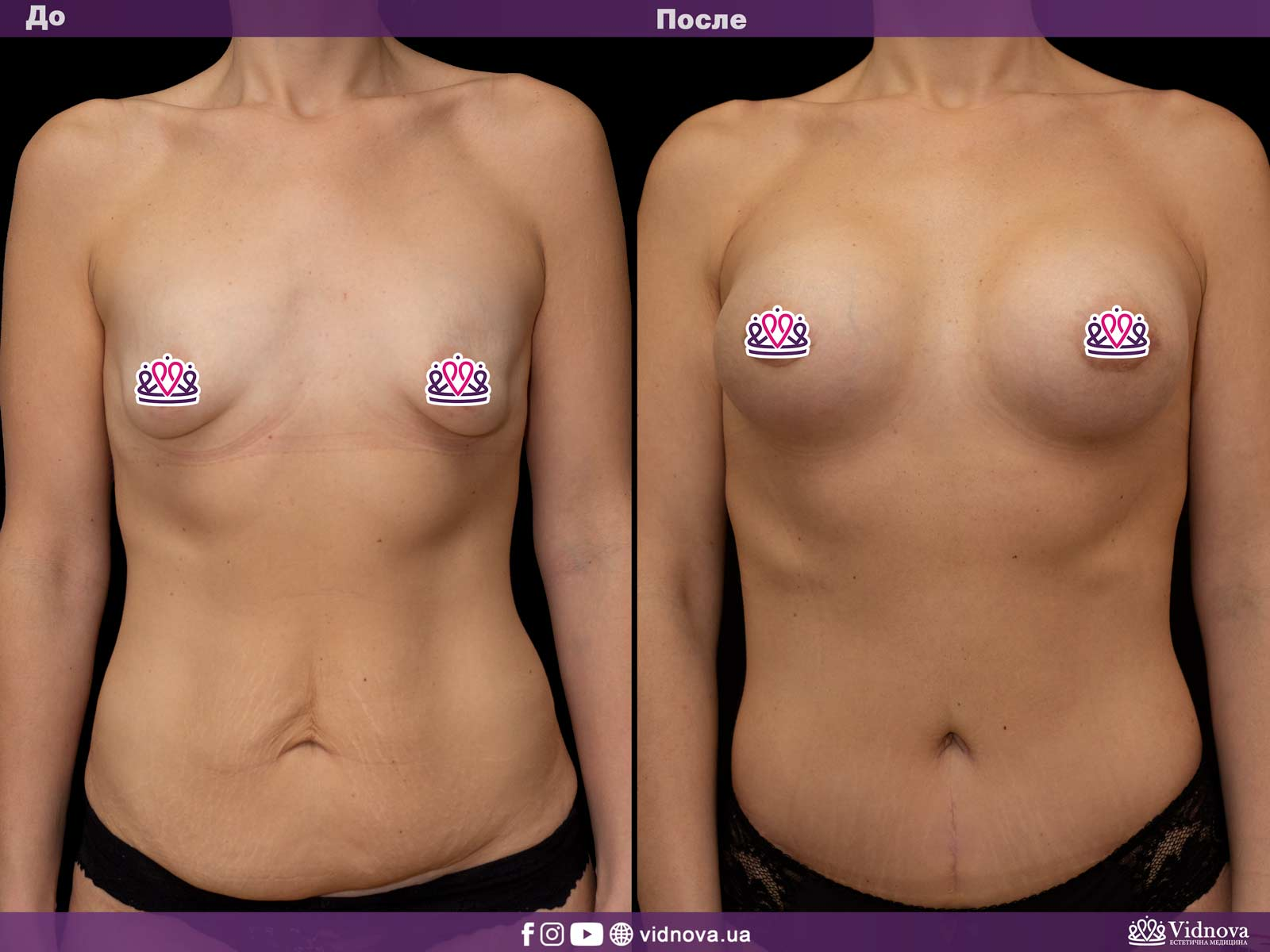 Совмещенные операции: Фото До и После - Пример №4-2 - Клиника Vidnova