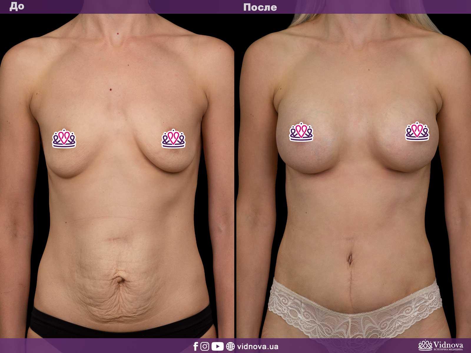 Совмещенные операции: Фото До и После - Пример №2-2 - Клиника Vidnova