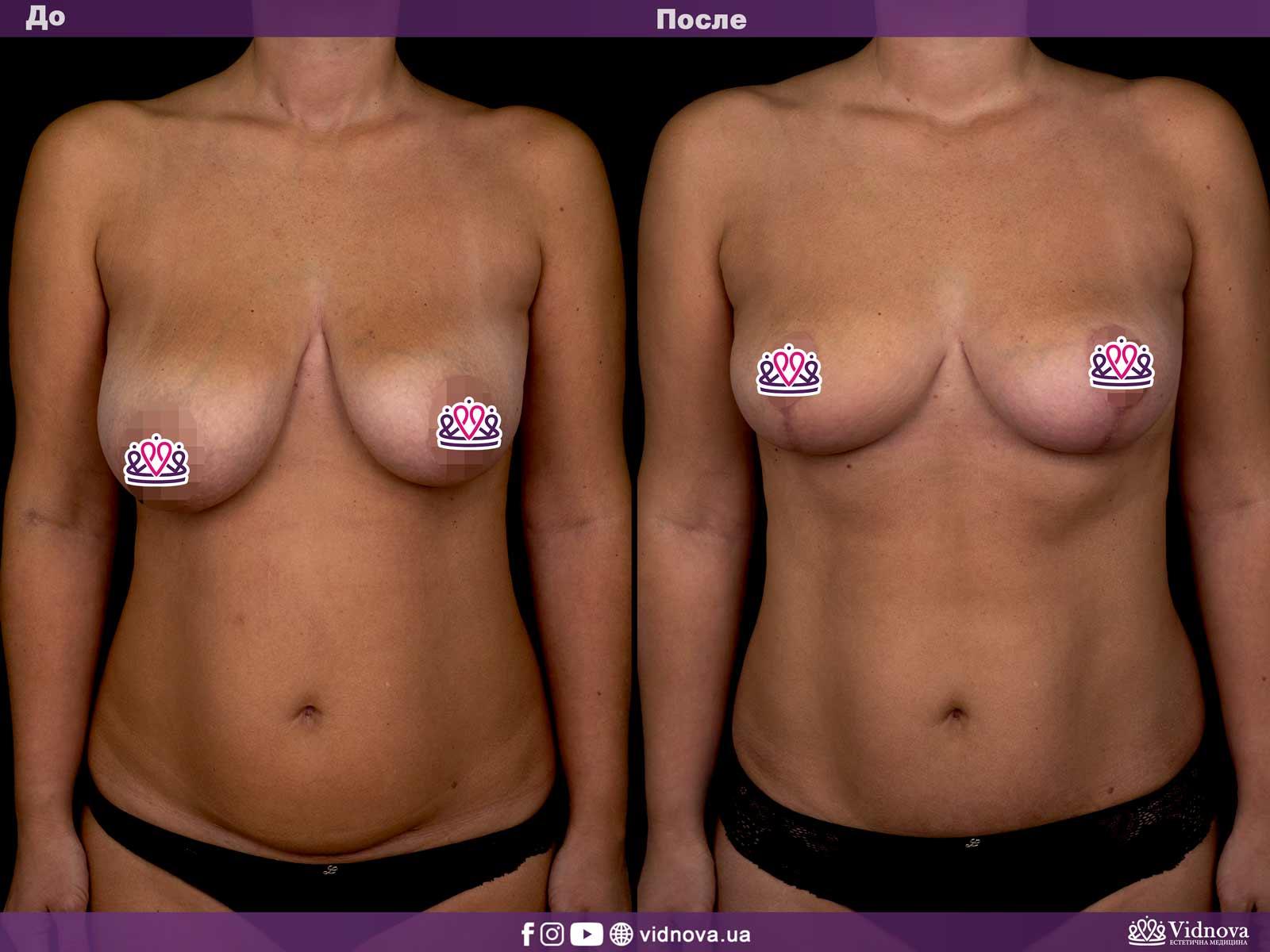 Совмещенные операции: Фото До и После - Пример №1-2 - Клиника Vidnova