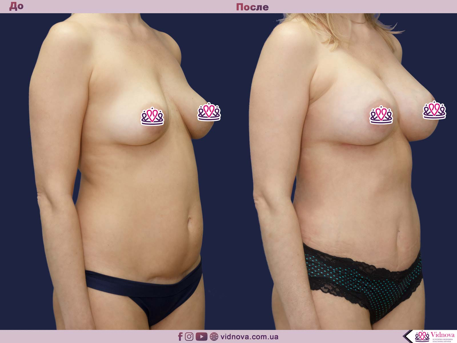 Совмещенные операции: Фото До и После - Пример №7-3 - Клиника Vidnova