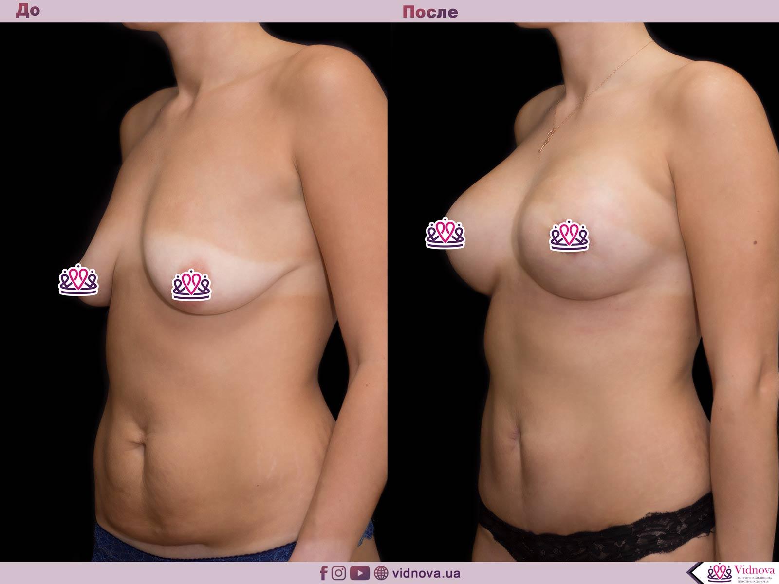 Совмещенные операции: Фото До и После - Пример №5-3 - Клиника Vidnova