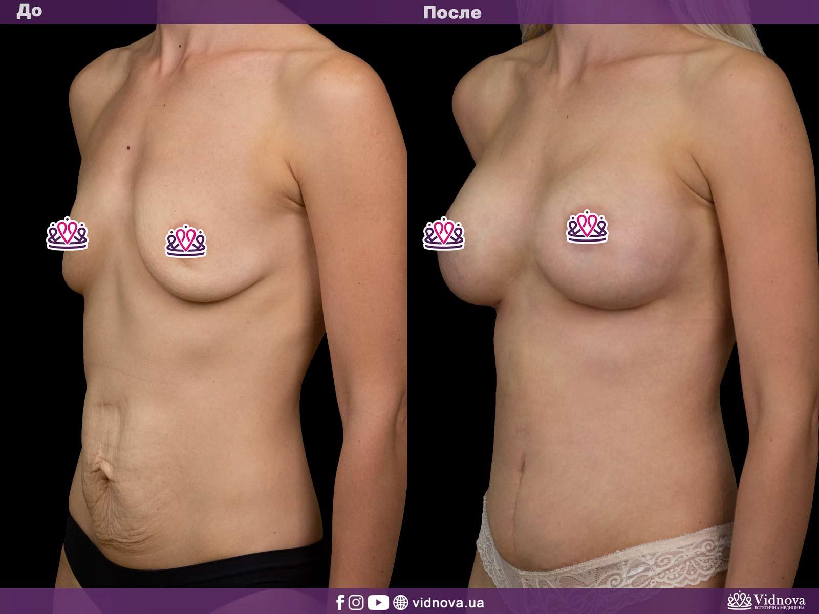 Совмещенные операции: Фото До и После - Пример №2-3 - Клиника Vidnova