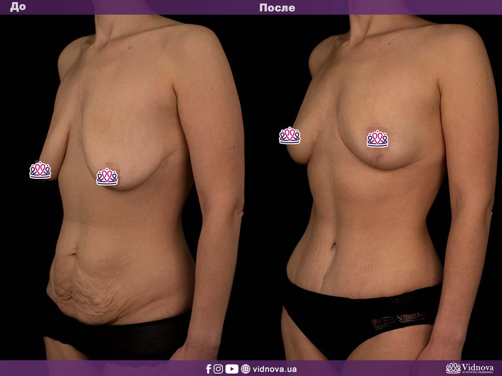Совмещенные операции: Фото До и После - Пример №1-3 - Клиника Vidnova