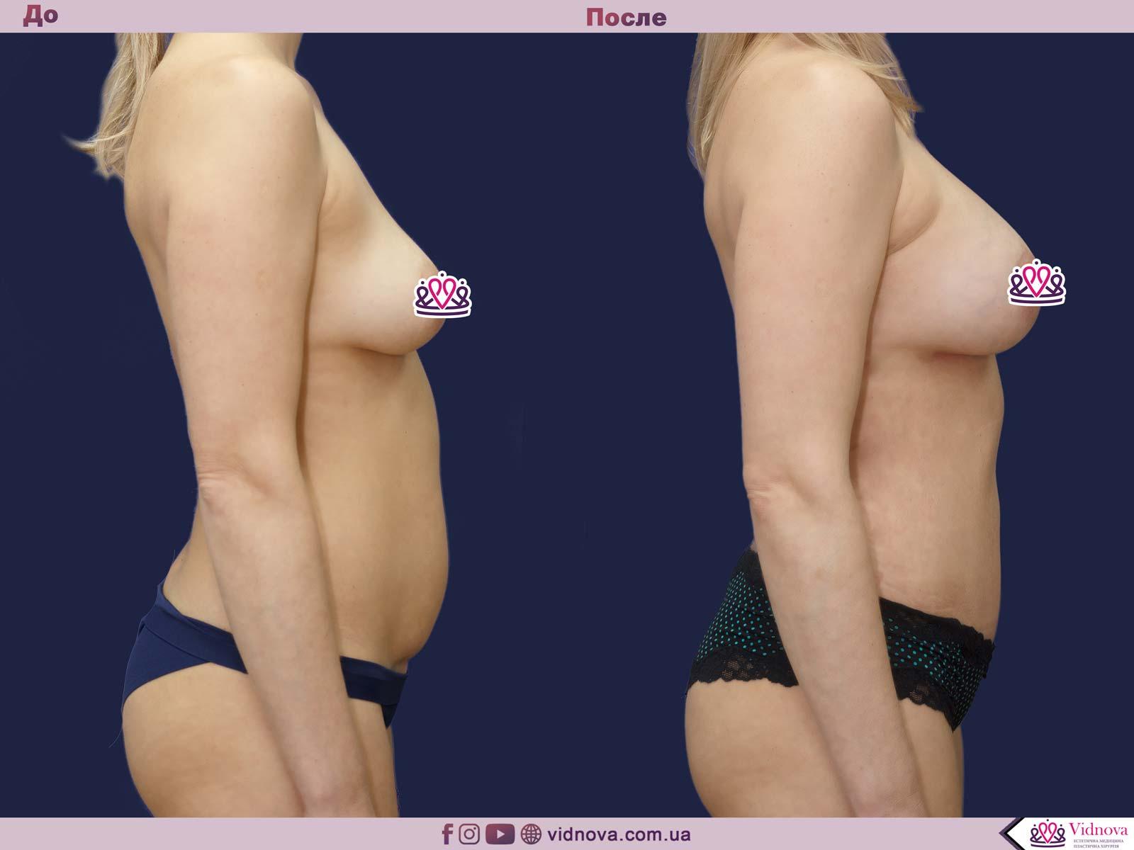 Совмещенные операции: Фото До и После - Пример №7-4 - Клиника Vidnova