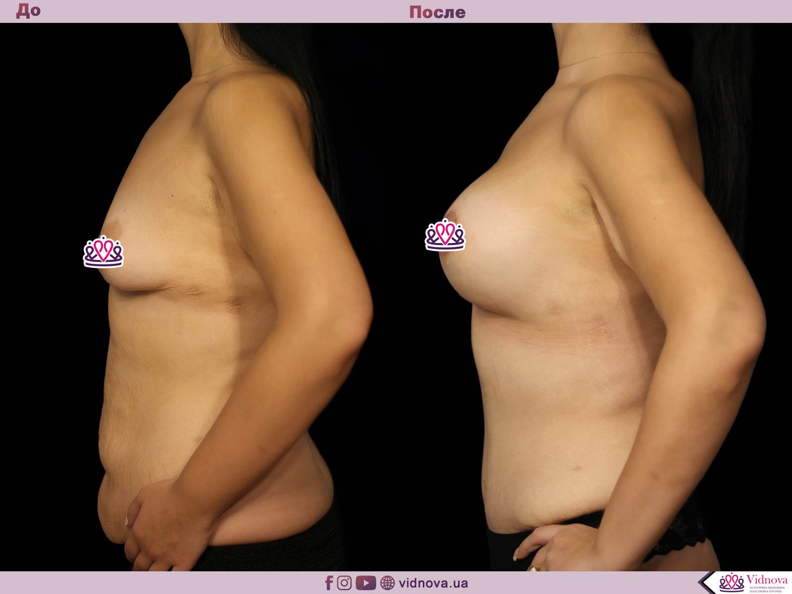 Совмещенные операции: Фото До и После - Пример №6-3 - Клиника Vidnova