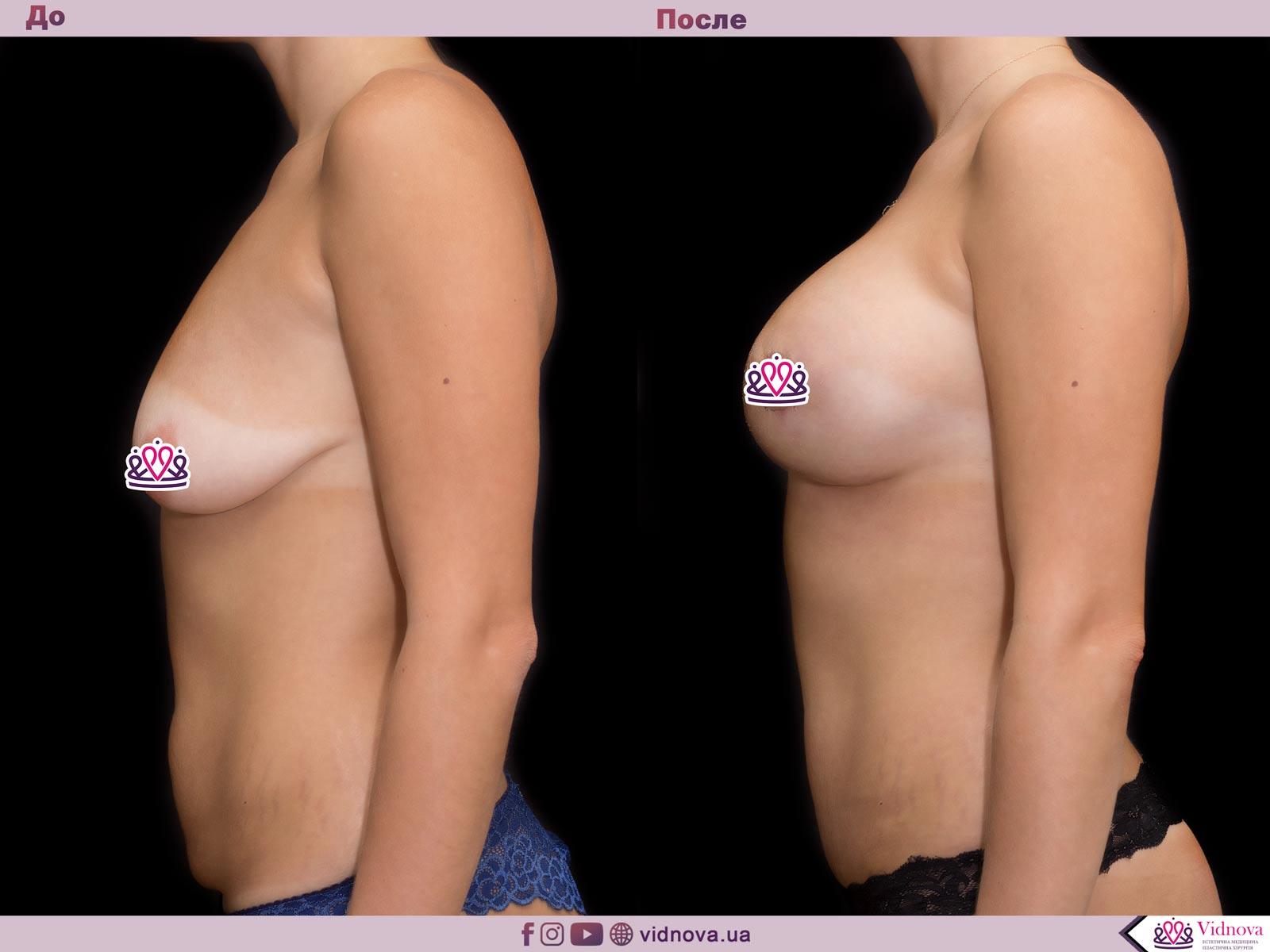 Совмещенные операции: Фото До и После - Пример №5-4 - Клиника Vidnova