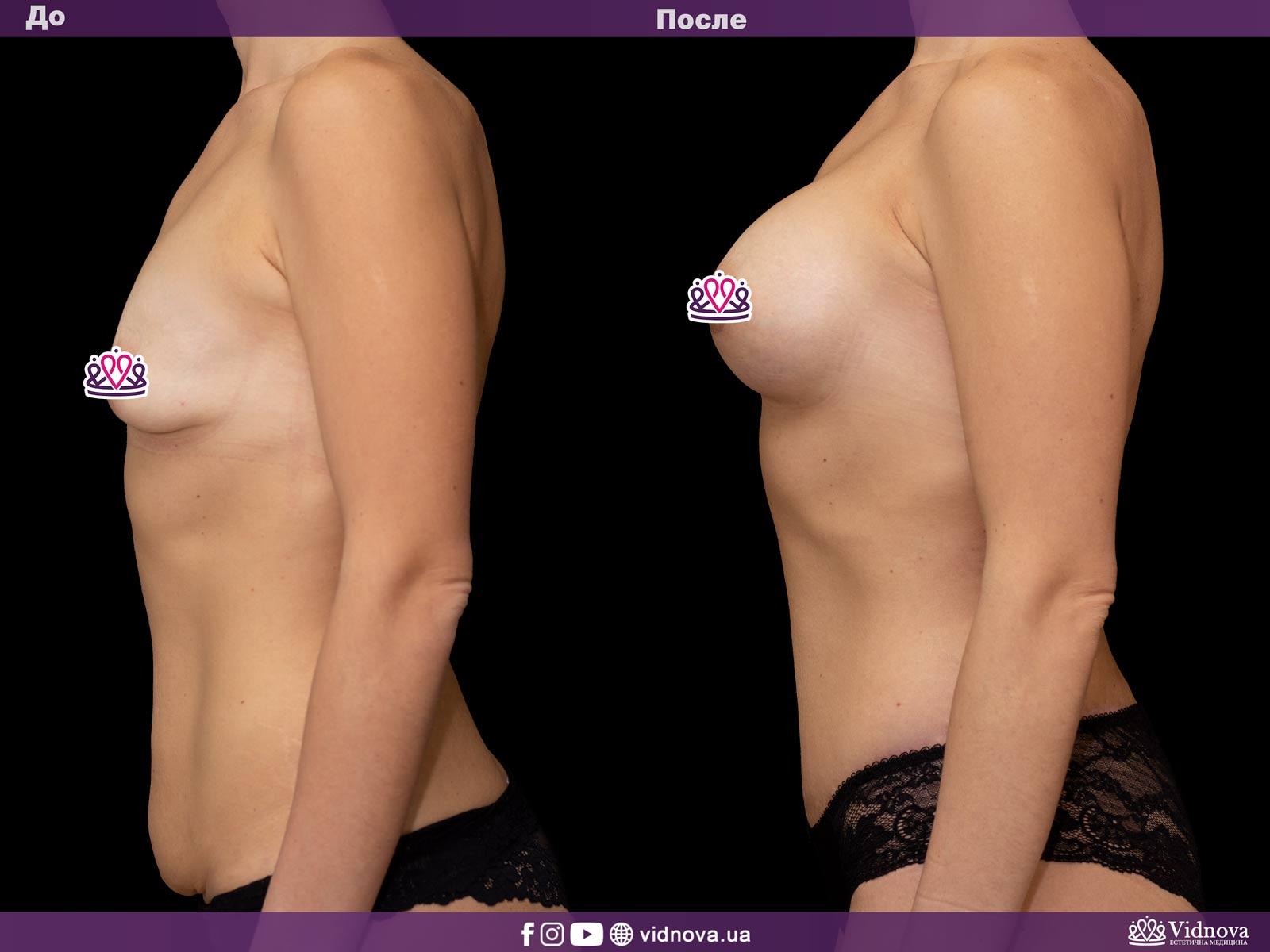 Совмещенные операции: Фото До и После - Пример №4-4 - Клиника Vidnova