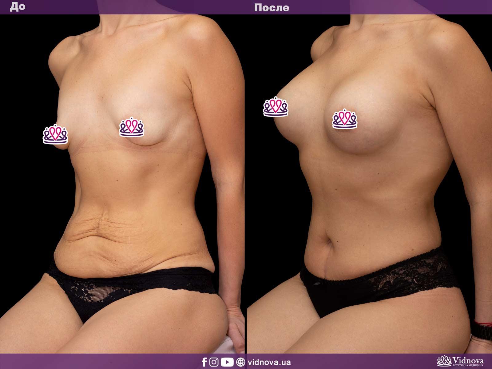 Совмещенные операции: Фото До и После - Пример №4-1 - Клиника Vidnova