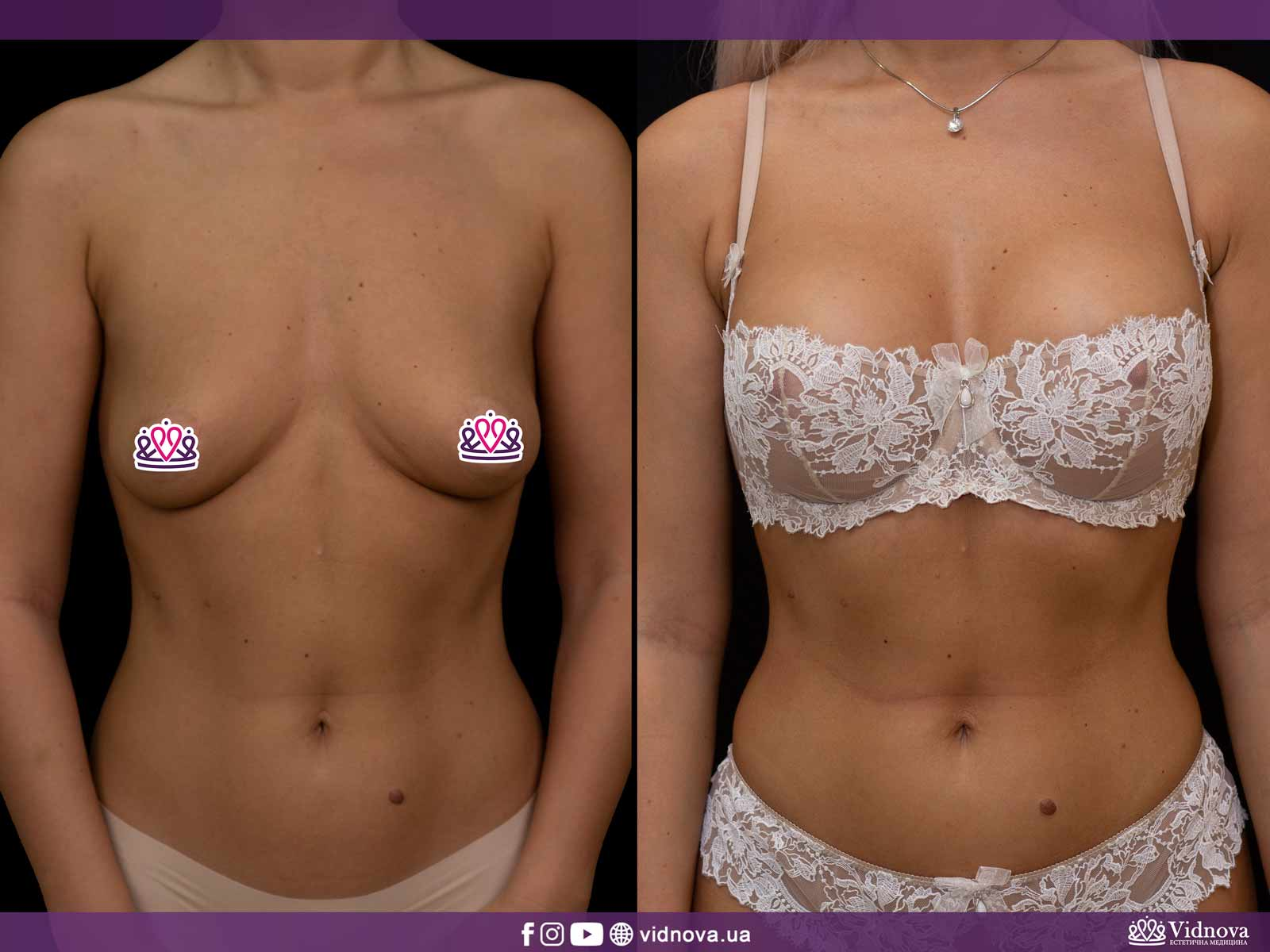 Увеличение груди: Фото ДО и ПОСЛЕ - Пример №10-1 - Клиника Vidnova