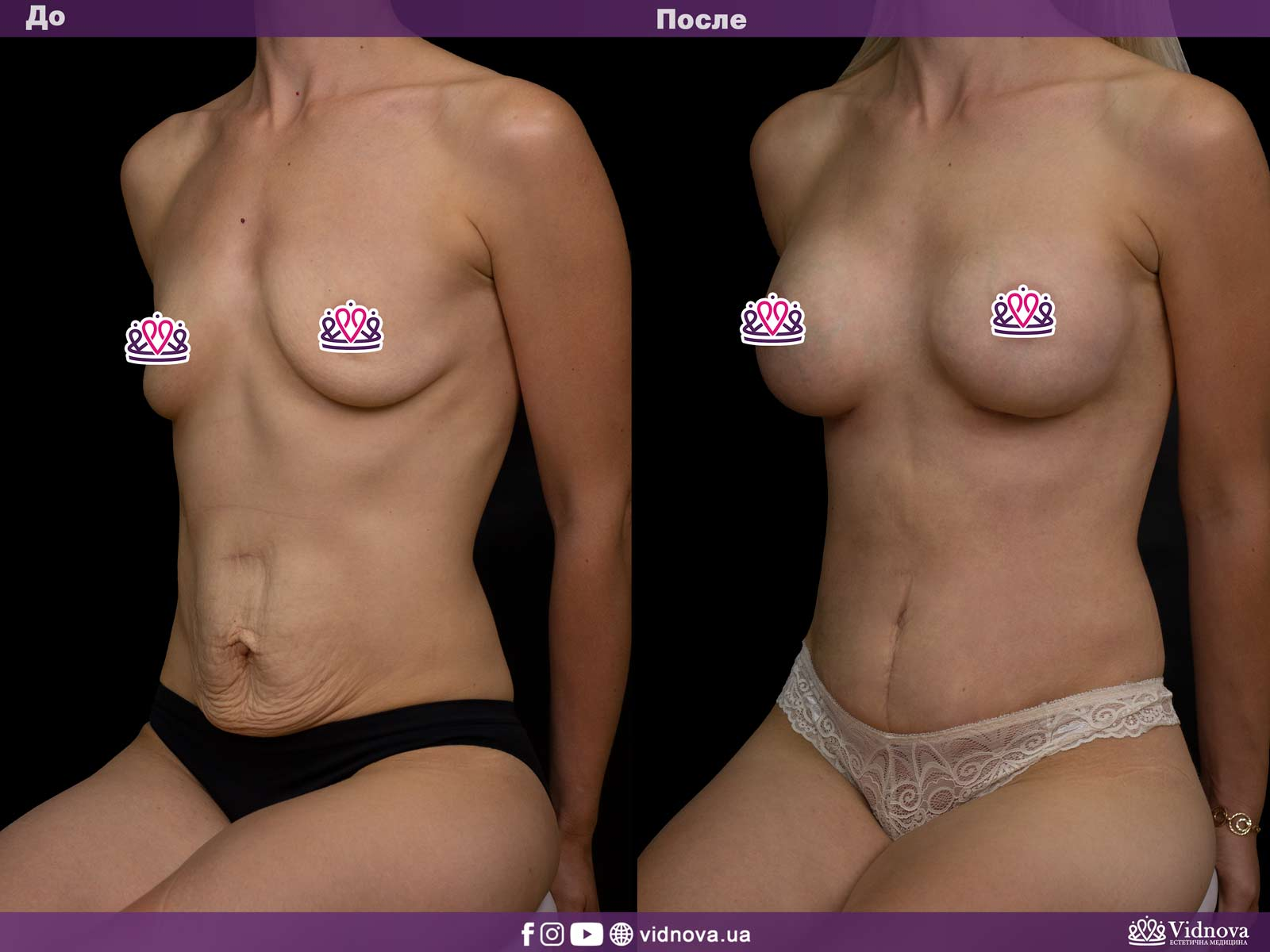 Совмещенные операции: Фото До и После - Пример №2-1 - Клиника Vidnova