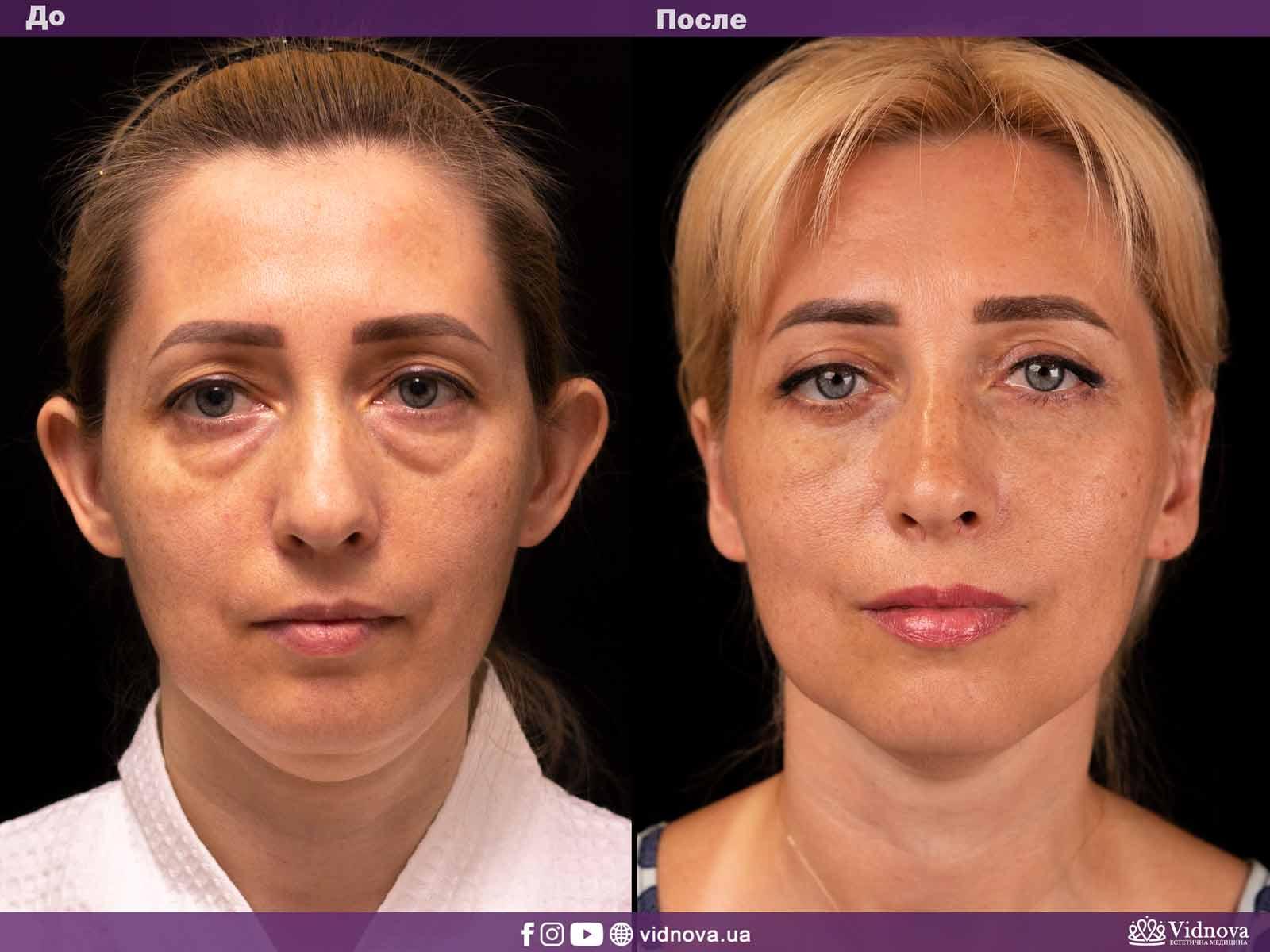 Блефаропластика: Фото До и После - Пример №3-1 - Клиника Vidnova