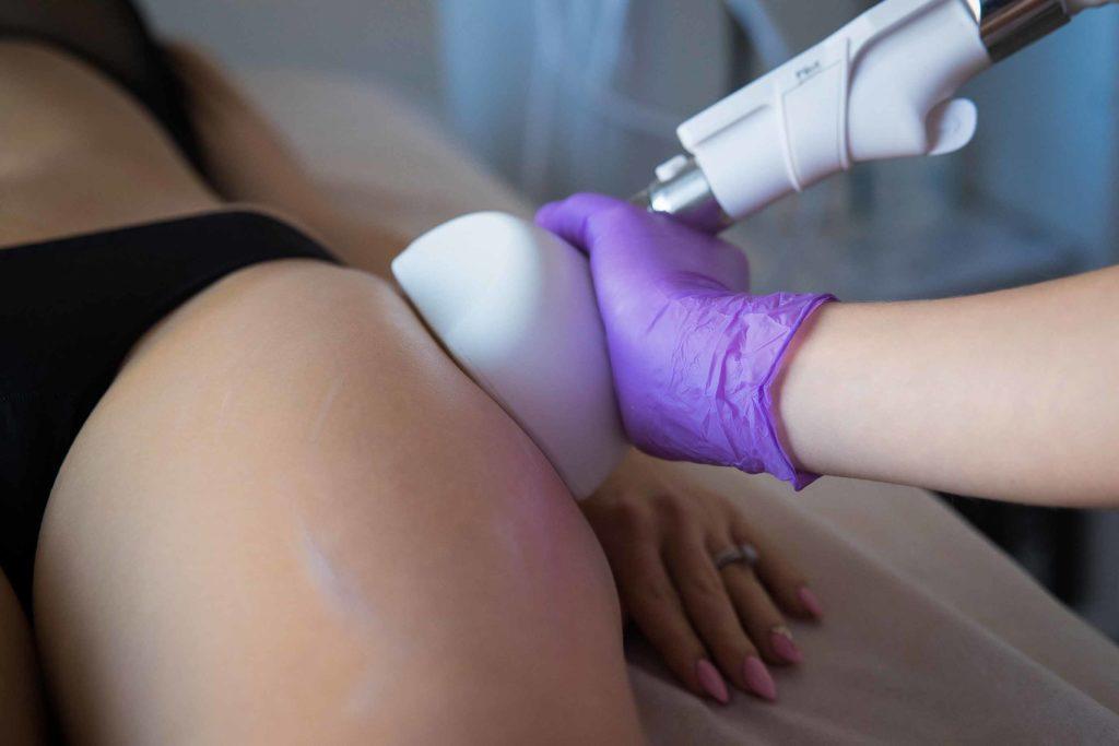 Вакуумно-роликовый массаж тела STARVAC IMG 96151 2 1024x683 - клиника VIdnova