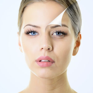 Как действует ботокс? Все об «уколах красоты» content 300x300 - клиника VIdnova