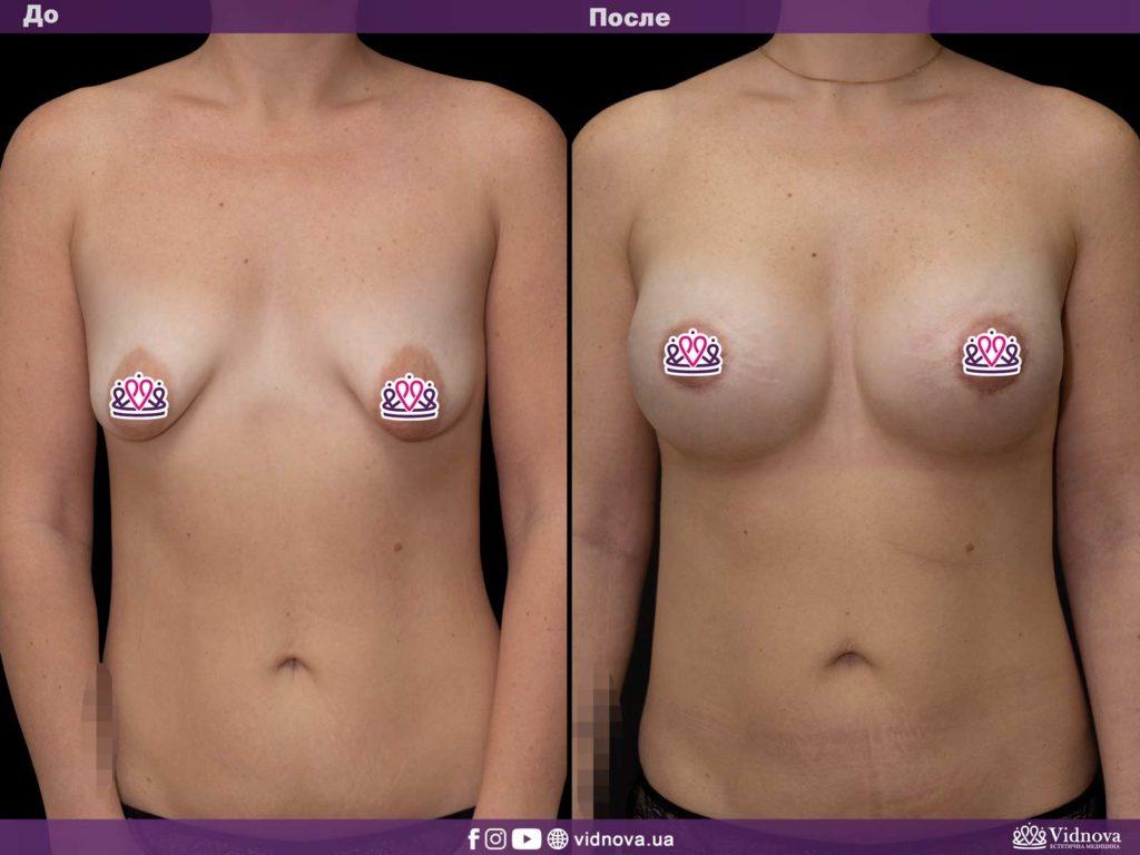Мастопексия молочных желез: подтяжка груди с имплантами или без? 1v 1 1024x768 - клиника VIdnova