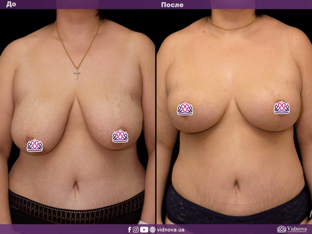 Подтяжка груди (мастопексия) 1v 16 1024x768 - клиника VIdnova