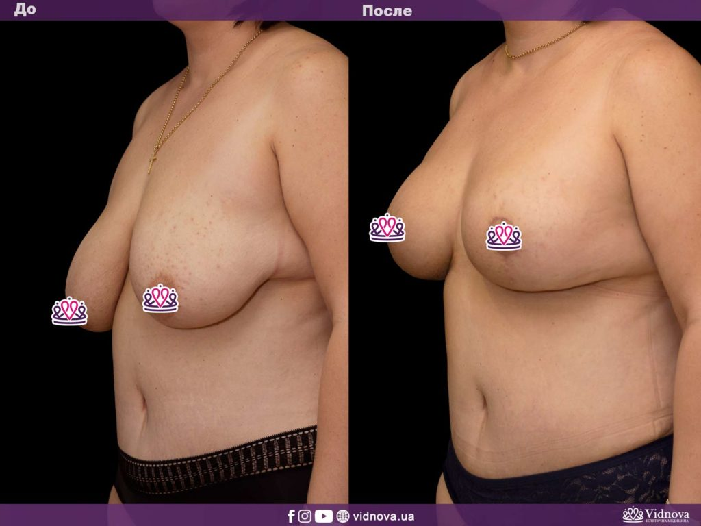 Мастопексия молочных желез: подтяжка груди с имплантами или без? 2v 13 1024x768 - клиника VIdnova