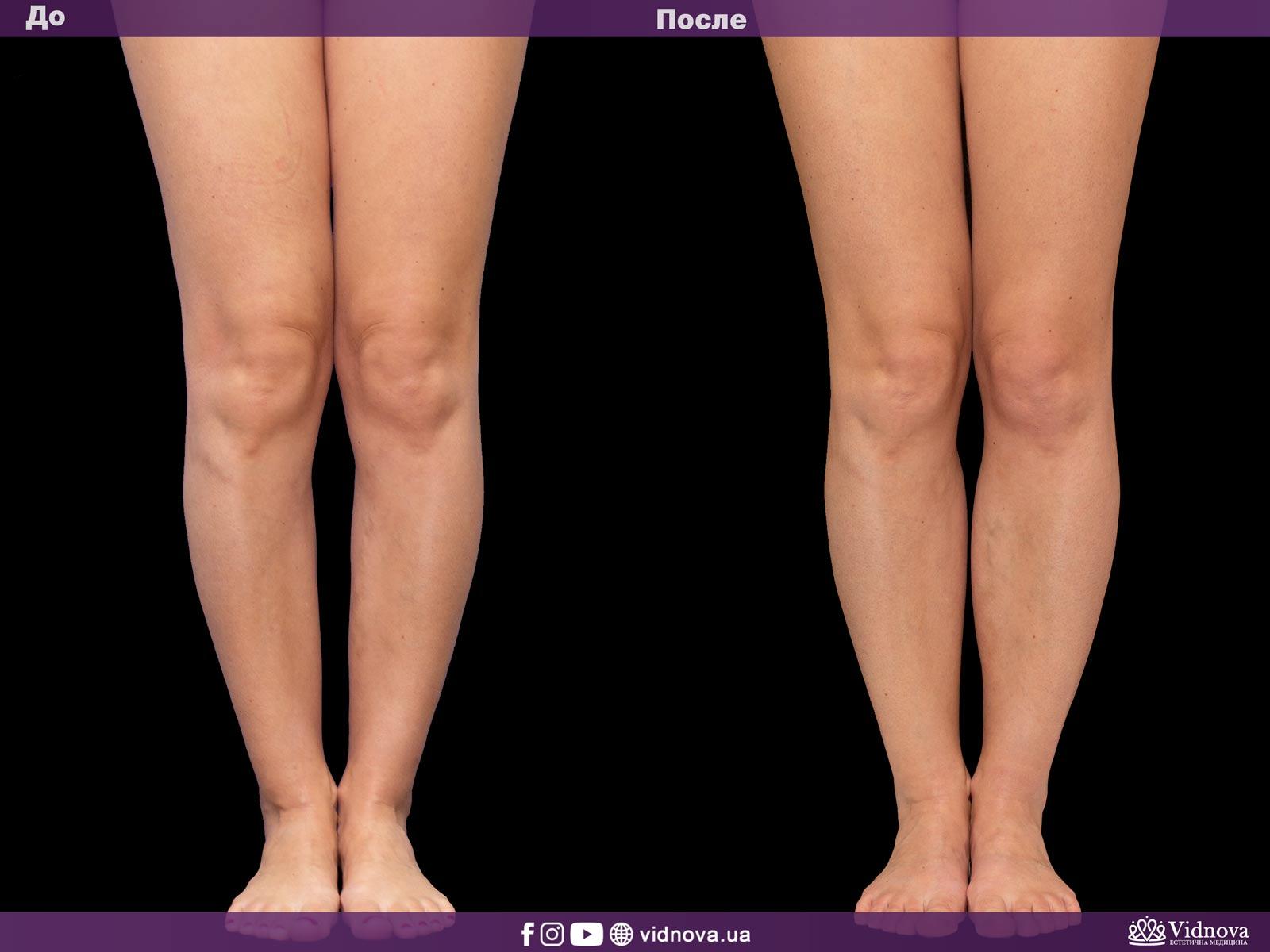 Круропластика: Фото До и После - Пример №1-1 - Клиника Vidnova
