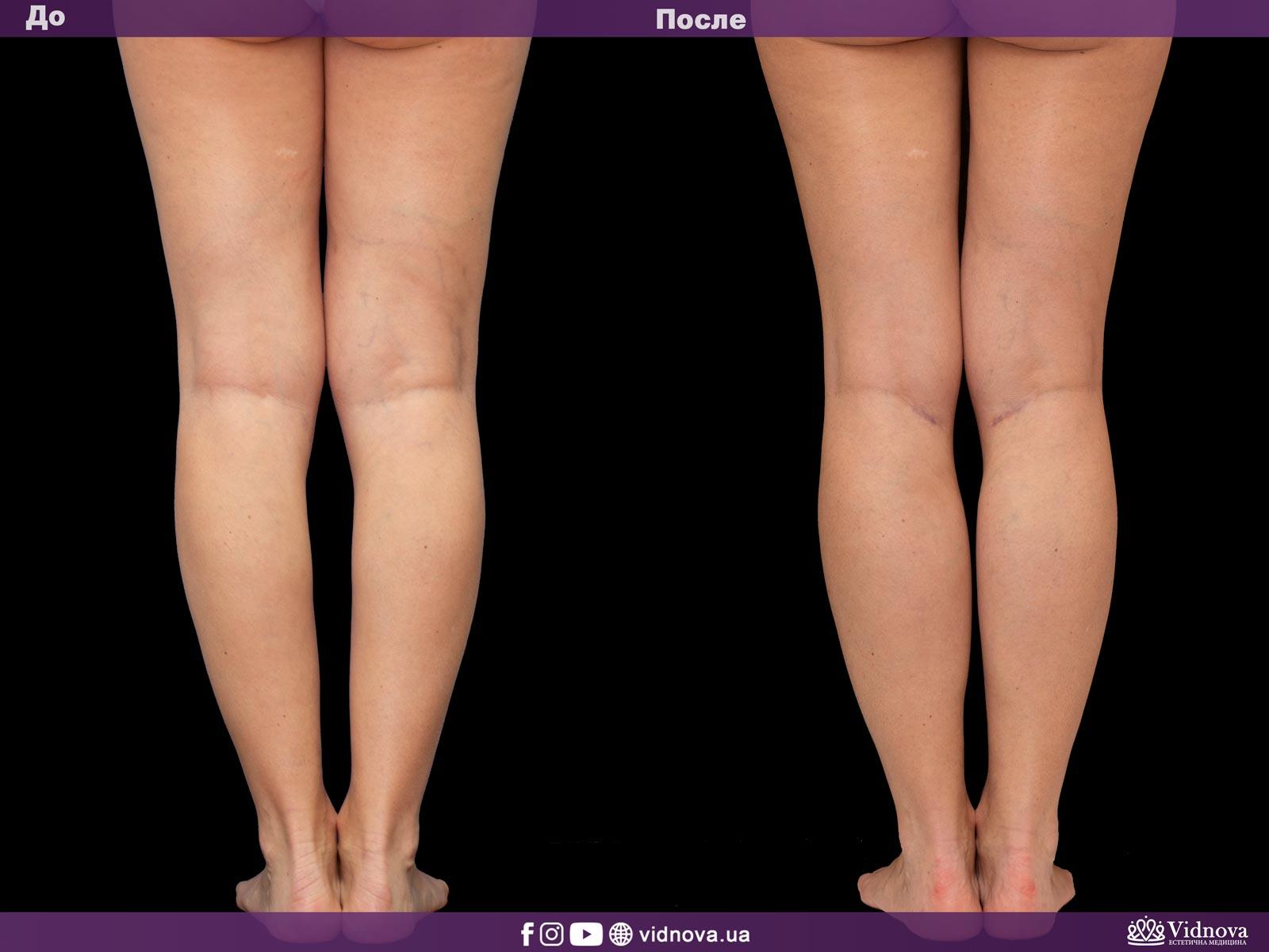 Круропластика: Фото До и После - Пример №1-2 - Клиника Vidnova