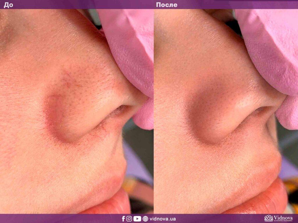 Лазерное удаление сосудов на лице в Запорожье фото до-после