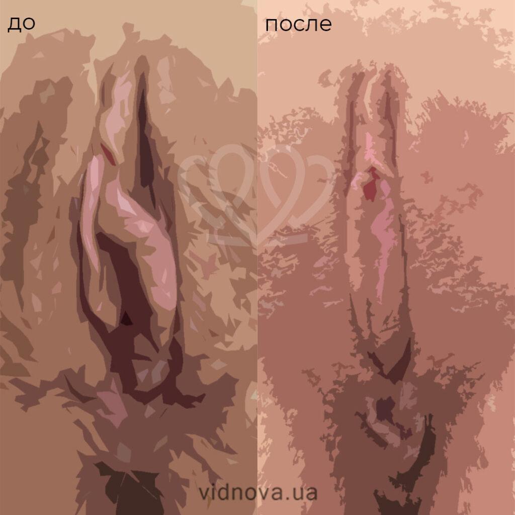 лазерное интимное омоложение Fotona фото до-после