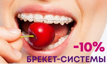 Акция -10% на брекет-системы для выравнивания зубов в Запорожье